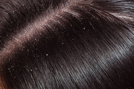Dandruff is visible on dark hair female