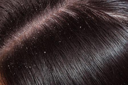 Schuppe ist sichtbar auf dunklen Haaren weiblich