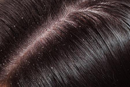 secretion: Dandruff is visible on dark hair female