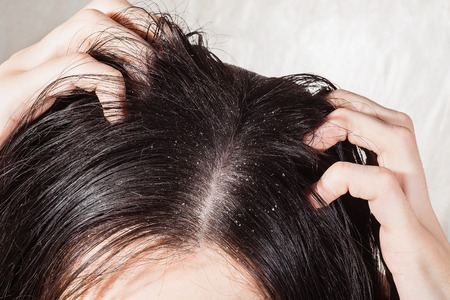 Female hand scratched his head with dandruff Stock Photo