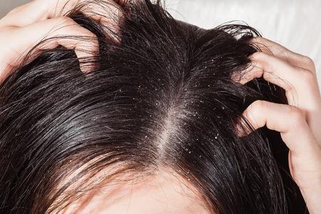 Mano femenina se rascó la cabeza con la caspa Foto de archivo