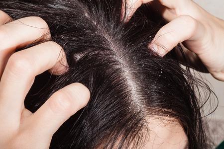 Weibliche Hand kratzte sich am Kopf mit Schuppen