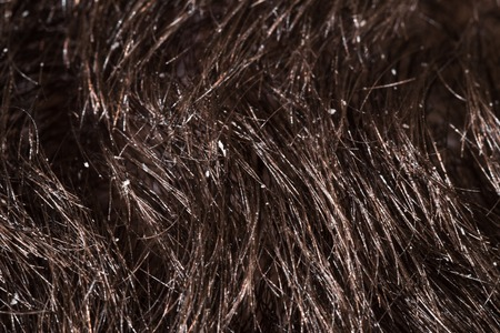 secretion: Dandruff is visible on dark hair male Stock Photo