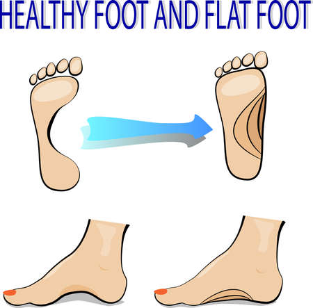 flat foot: illustration of a healthy and flat foot