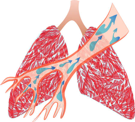 emphysema: illustration of the trachea and lungs. expectorate means
