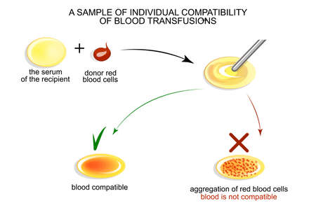 reanimate: illustration of tests on individual compatibility of blood