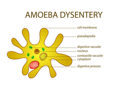 ILLUSTRATION OF AMOEBA DYSENTERY. microbiology. intestinal infection