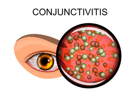 illustration of a healthy eye, the patient with conjunctivitis and styes 矢量图像