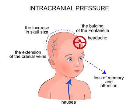Ilustración de los síntomas de la presión intracraneal en niños Ilustración de vector
