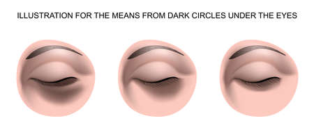 ILLUSTRATION FOR THE MEANS FROM DARK CIRCLES UNDER THE EYES Imagens - 56937930