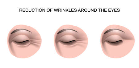 illustration for the wrinkles around the eyes 免版税图像 - 56937932