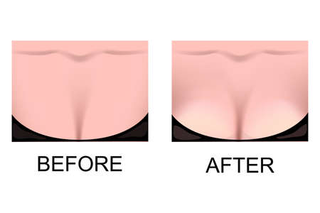 big breast: illustration of breast enlargement. plastic surgery. little and big