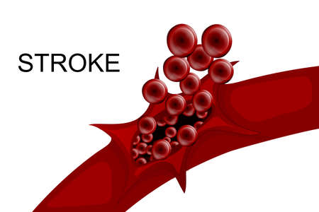 illustration of a rupture of the vessel. hemorrhagic stroke. insult