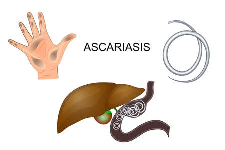 illustration hands dirty, roundworm obstruction in the liver Illustration