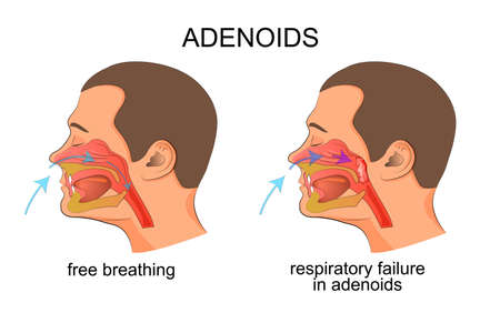illustration of the growth of adenoids, adenoids, breathing problems