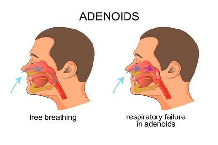 illustratie van de groei van de amandelen, adenoïden, ademhalingsproblemen