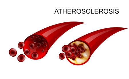 illustration of healthy artery and atherosclerotic. atherosclerosis
