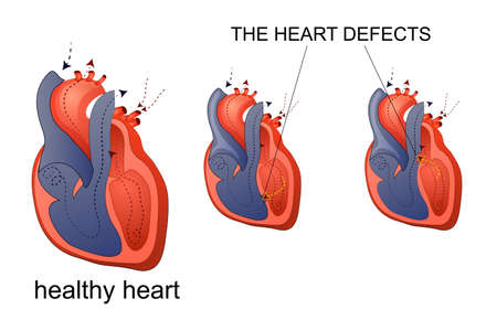 myocardium: illustration of healthy heart and heart disease