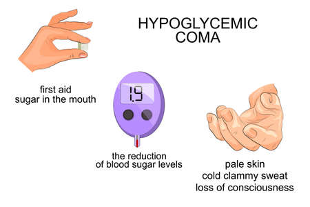 coma: illustration of symptoms and hypoglycemic coma. infographics