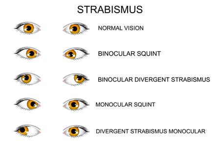 건강한 눈의 그림과 사시의 종류.