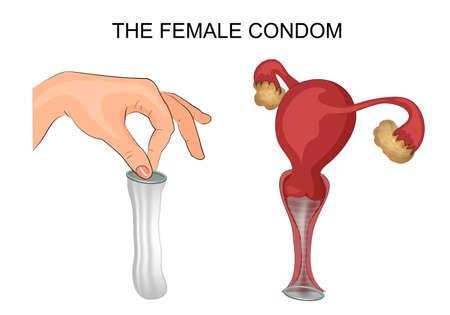 illustration of a female condom and method of application. the uterus, ovaries, vagina