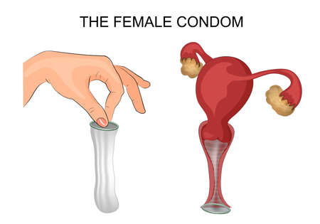 illustration of a female condom and method of application. the uterus, ovaries, vagina