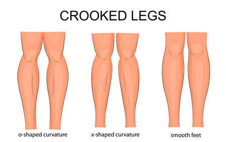 curved leg: illustration of types of curvature of the legs Illustration