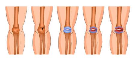 L'arthrite de l'articulation du genou, la partie saillante, une fracture de la rotule Banque d'images - 59695742
