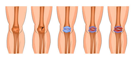 arthritis of the knee joint, protrusion, fracture of the patella