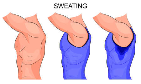 perspiration: illustration of a beefy male torso with sweaty armpits Illustration