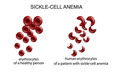 haemoglobin: illustration of blood cells in the disease sickle-cell anemia