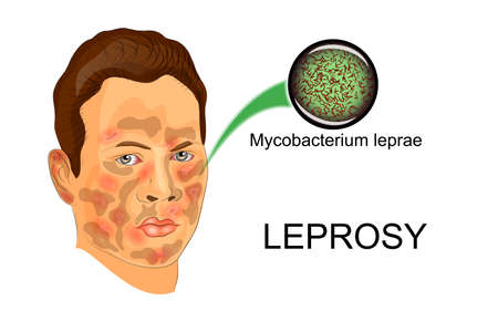 leprosy: illustration of person sick suffering from leprosy and the agent of this disease under the microscope Illustration