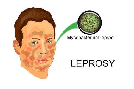 lepra: ilustración de la persona que sufre enfermedad de la lepra y el agente de esta enfermedad bajo el microscopio
