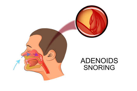 snore: illustration adenoids as causes of snoring Illustration