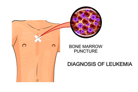 marrow: leukemia. illustration of analysis of bone marrow biopsy Illustration