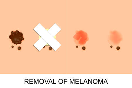 removal: illustration of removal of melanoma