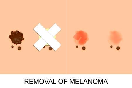 melanin: illustration of removal of melanoma