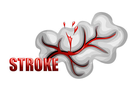 insult: illustration of a rupture of the vessel. hemorrhagic stroke. insult. red blood cells.