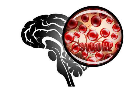 Ilustracja pęknięcia naczynia. udar krwotoczny. obraza. Czerwone krwinki. Ilustracje wektorowe