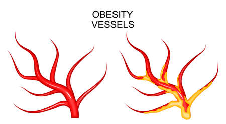 cerebral artery: illustration of the blood vessels healthy and obese