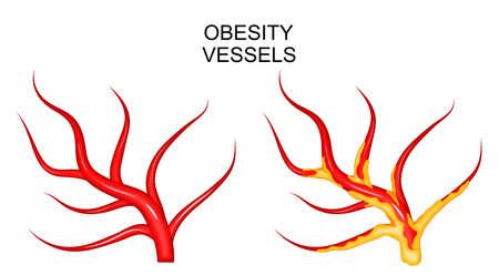 血管健康と肥満のイラスト
