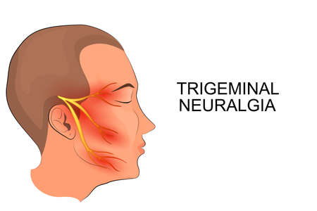 distressed: illustration of a male head. trigeminal neuralgia. neuroscience Illustration
