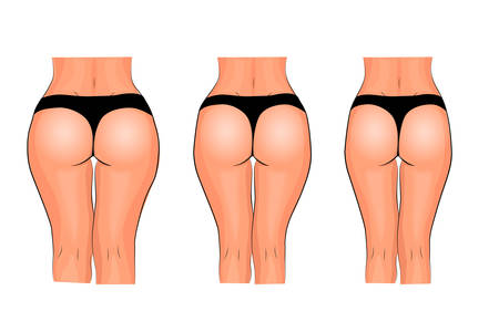 illustration buttocks of female weight loss. fitness. comparison Illustration