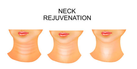 illustration of neck, wrinkles, rejuvenation