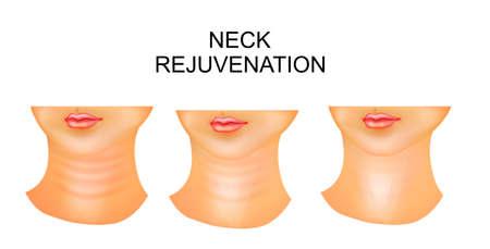ilustración de cuello, arrugas, rejuvenecimiento