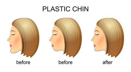double chin: illustration of plastic surgery of the chin. mastoplastica before and after.
