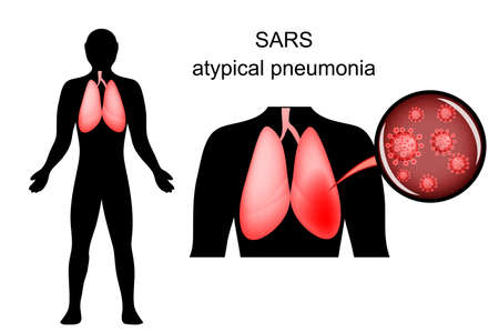 pulmonology: illustration of SARS. inflamed lungs and the causative agent. virus