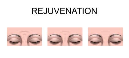 rejuvenation: illustration of forehead wrinkles. rejuvenation. plastic surgery