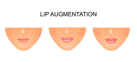 plump lips: illustration of lip augmentation. before and after