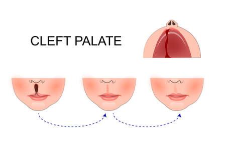 子供の口蓋のイラスト。整形手術。上部の口蓋の復興  イラスト・ベクター素材